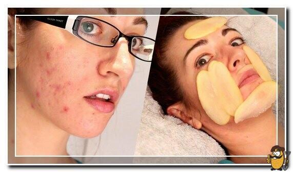 картошка от угрей на лице